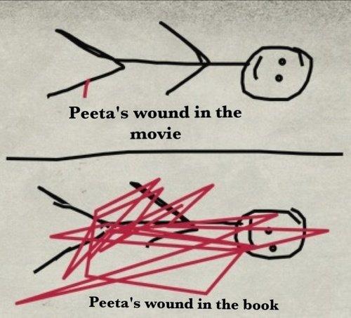 Book vs Movie. . Peeta' s wound in the movie Peeta' s wound in the bunk