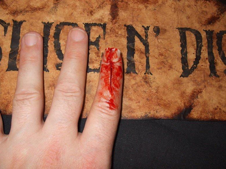 MORBID: Stubbing your finger..... .. mfw finger injuries