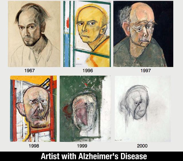 Memory remainings. . 1998 . 1999 2999 Artist with , Disease asdasdasdasd