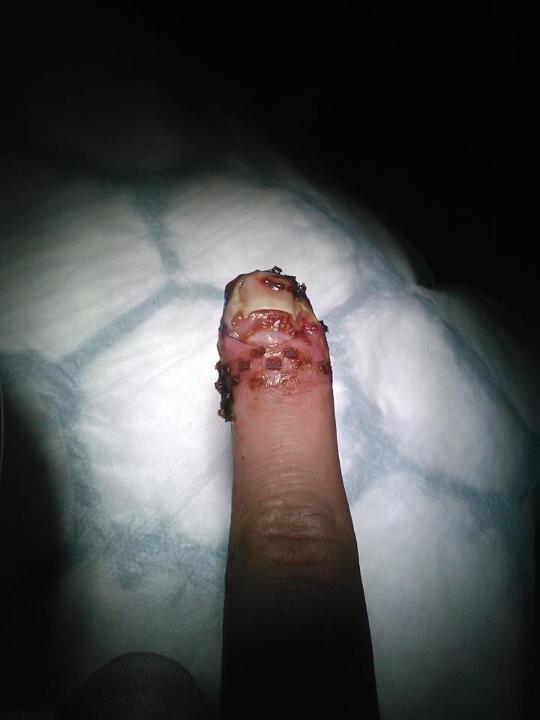 Smashed finger!. .. looks like you sprinkled little bacon bits on it