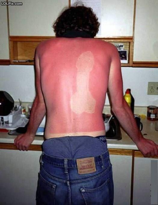 sunburn pranlk. lol.. you spelled prank wrong lol