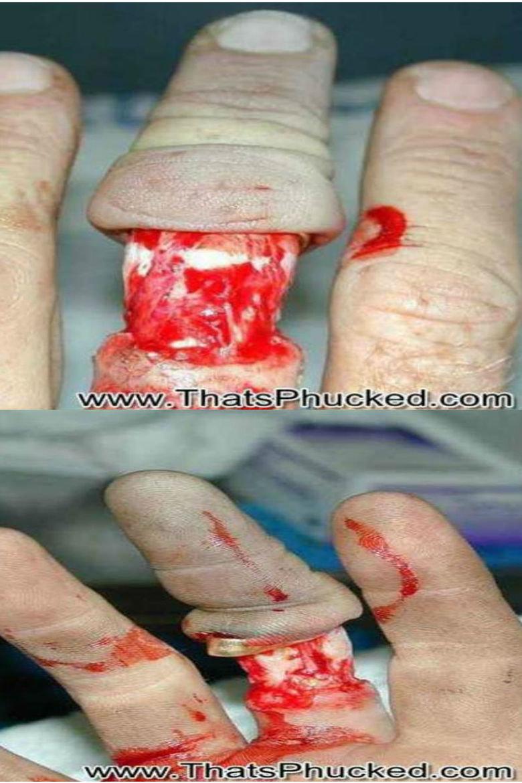 wedding ring. .