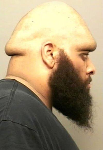 A True Dick Head. .. It looks like his neck is blowing a bubble