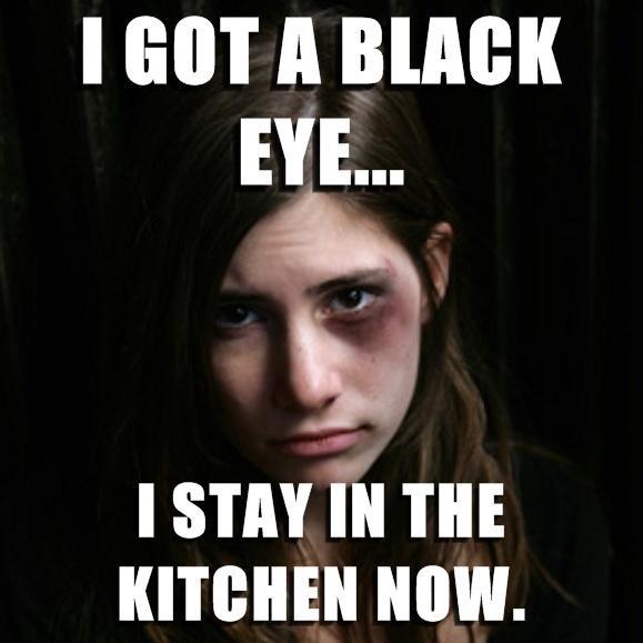Black_c44648_467825 black eye